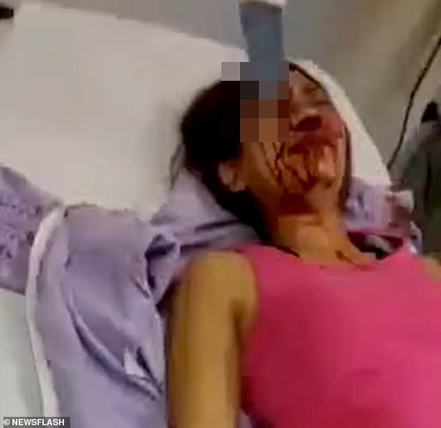 Footage shows the unnamed victim moaning 'oh my god, help me, it hurts' as she lies with the knife still stuck in her blood-covered face