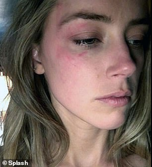 During the trial Heard showed bruises she claimed were inflicted by Depp as he allegedly smashed her iPhone in her face at her LA home in May 2016