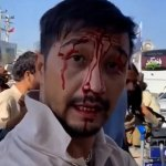 Afghanistan evacuation: Man beaten bloody by Taliban as airlift nears its end 💥👩💥