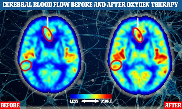 The two brain MRI scans of human participants indicate blood flow before (left) and after (right) one of the study participants had oxygen therapy. Areas where there are more yellow, orange and red tones indicate higher levels of blood flow. The two circled parts of the brain show where blood flow increased significantly in response to the treatment