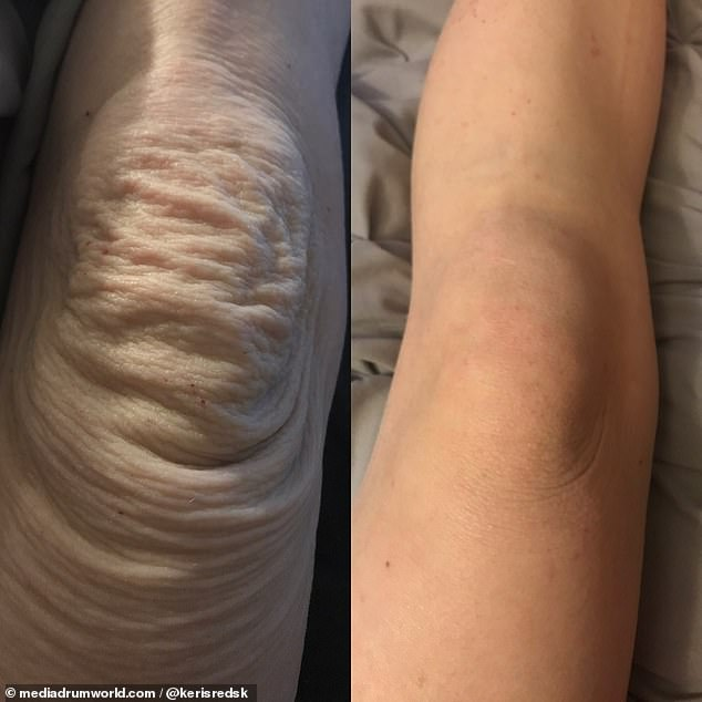 Keri's kneecaps during and after steroid withdrawal. Her symptoms were so severe, that at one point, she thought she would be 'better off dead'