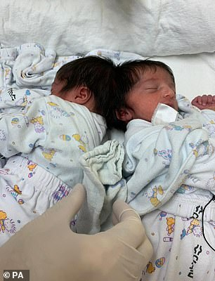 This photo shows the conjoined twins before they were separated by British surgeon Dr Noor ul Owase Jeelani in a rare 12-hour surgery