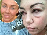 Michelle Heaton shares shocking picture taken during her alcoholism battle