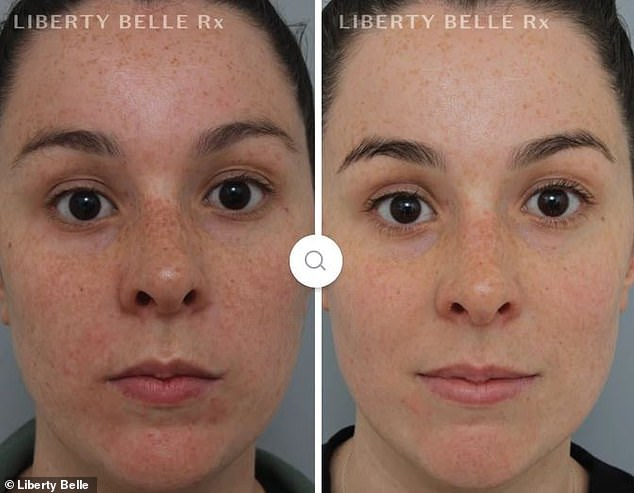 In a similar way it took just four weeks for a customer called Laura (pictured before and after) to see a major difference in her congestion, breakouts and pigmentation