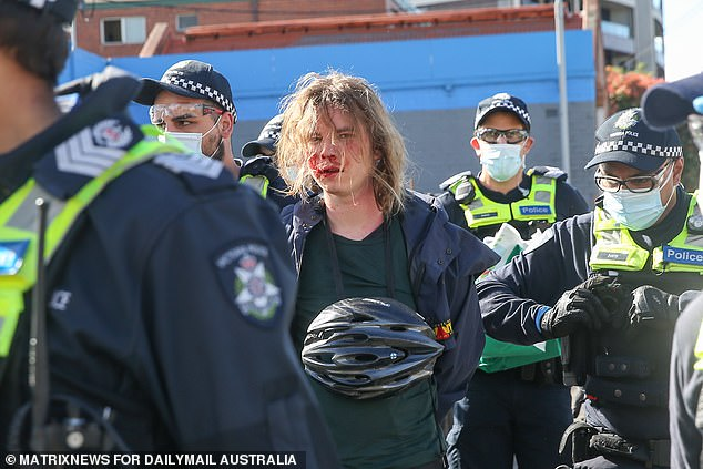 A protester is seen with blood on their face as they're escorted away by police
