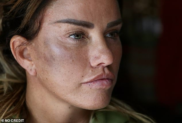 Tough: A source said: 'Katie left for Turkey this morning - she needs a few days to clear her head after what's going on' (pictured after her alleged assault)