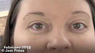 Looking at the images side-by-side, the mother-of-two said she noticed subtle differences as her eye appeared to grow and bulge over time
