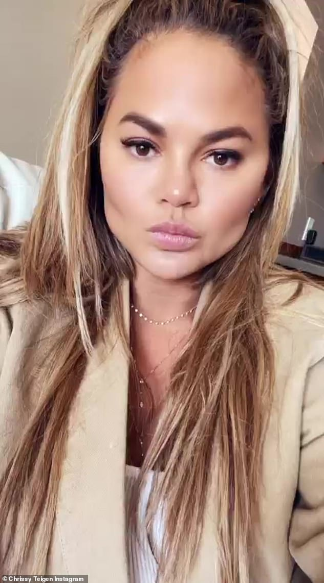 Bold and beautiful: Chrissy Teigen admitted she removed the fat from her face in candid conversation about cosmetic surgery on her Instagram Stories