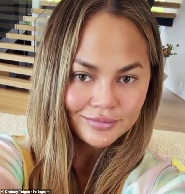 Face: Teigen told fans that one side of his face was 'stronger' than the other