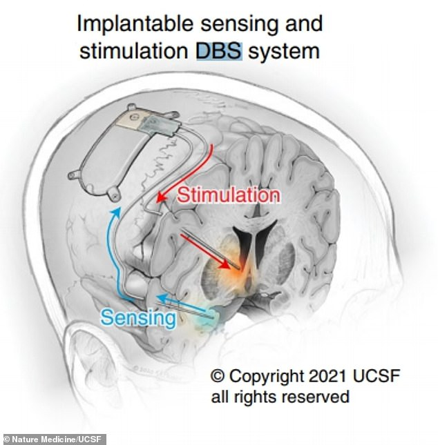 Illustration from research paper Shows Implantable Sensing and Stimulation Deep Brain Stimulation (DBS) System