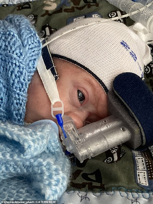 At 19 weeks, Kelly was admitted to King's College Hospital in London for laser surgical treatment.  Image: Baby Otis receiving oxygen at 8 weeks old