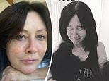 Shannen Doherty shares emotional photos and details her hair loss battle during chemotherapy