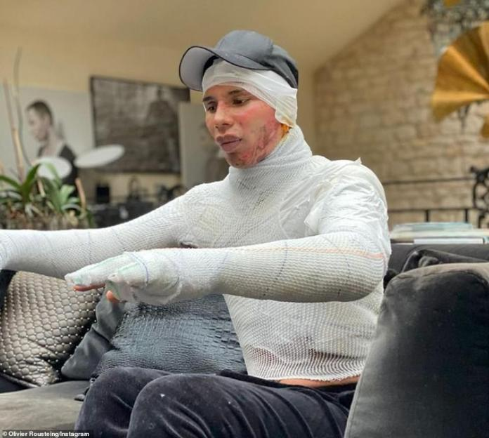 Traumatic: Olivier Rousteing, 36, has revealed he suffered severe face and body burns after his Paris home caught fire last year