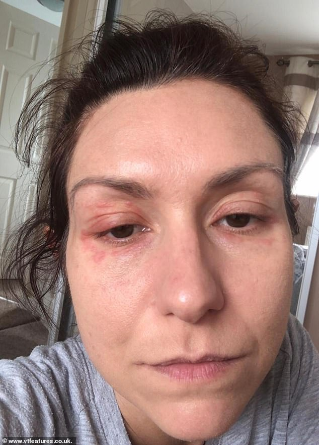 Natalie was unable to tolerate prescribed painkillers after being misdiagnosed with vulvodynia.  Image: Eczema breakouts due to extreme pain