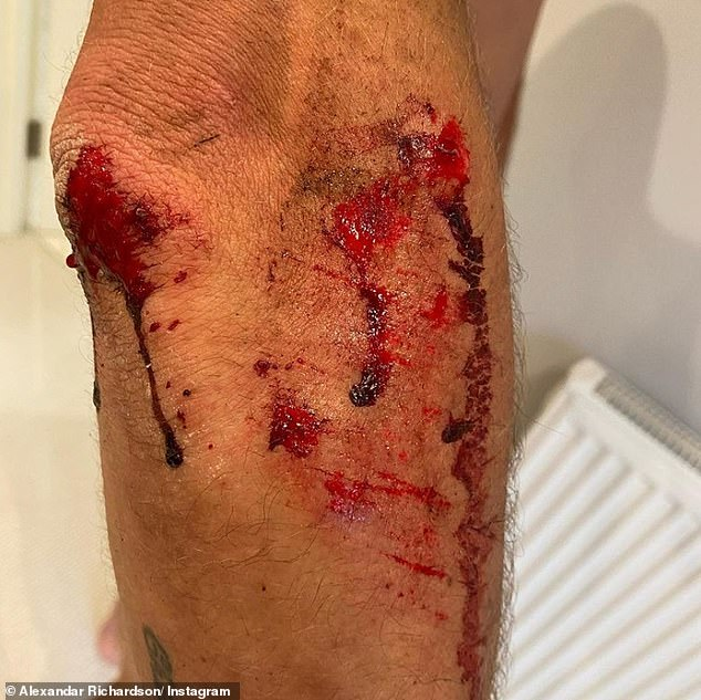Mr Richardson was dragged along the ground for 109 yards in Richmond Park and suffered nasty cuts to his legs before letting the attackers take the £10,000 bike