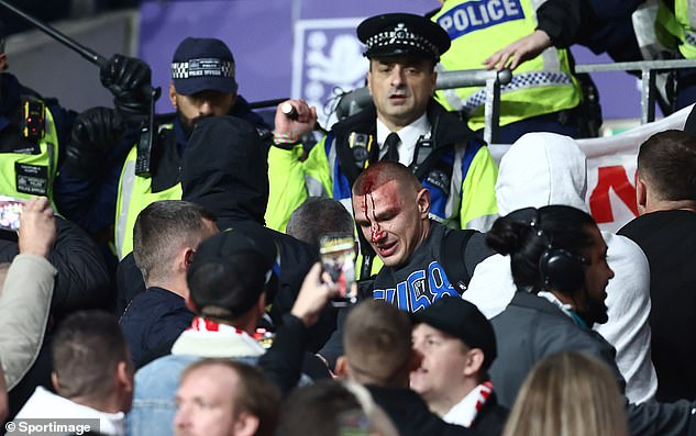 One Hungary fan is seen bleeding from his head after the clashes with police at Wembley