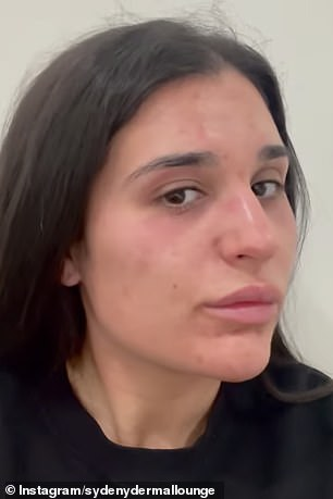 Photos shared on Instagram reveal how the intense peeling process can assist and replenish irritated skin