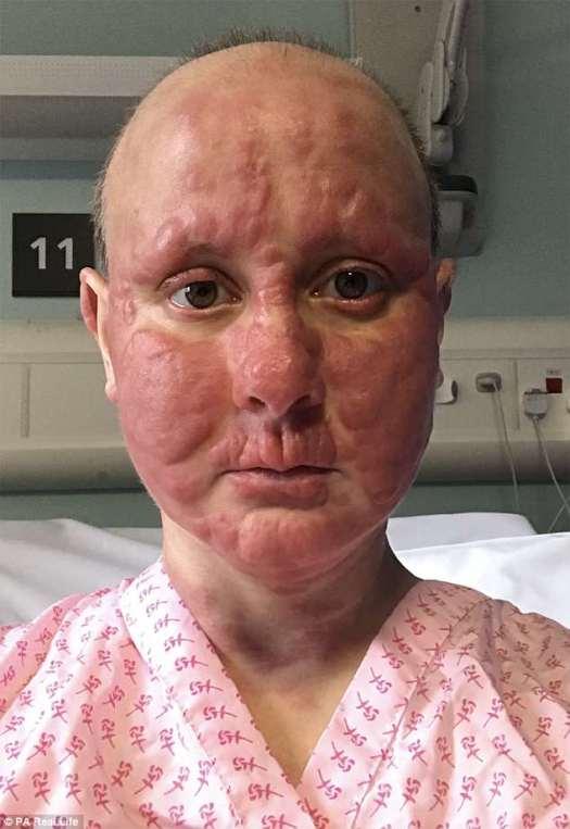 Kim Debling, de 34 años, de Basingstoke, Hampshire, es virtualmente irreconocible después de que una serie de bultos rojos le causaron estragos en la cara, causados por su linfoma cutáneo de células T en estadio cuatro.