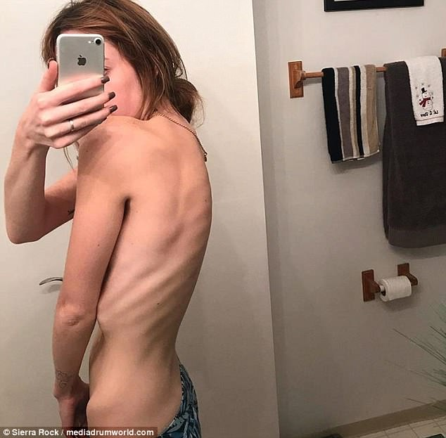 Sierra (pictured while suffering with her eating disorder) describes how she would starve herself for up to ten days, before going on a 24-hour binge