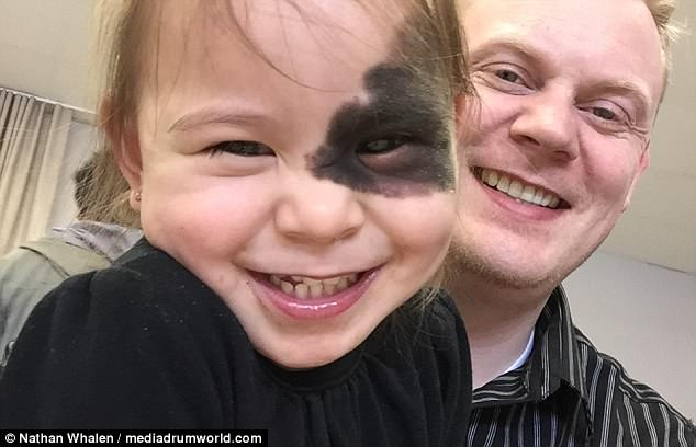 Distinctive: Nathan Whalen, 38, from Calgary, Canada, first learned of his daughter Samara's birthmark - which looks like a black eye - in the delivery room