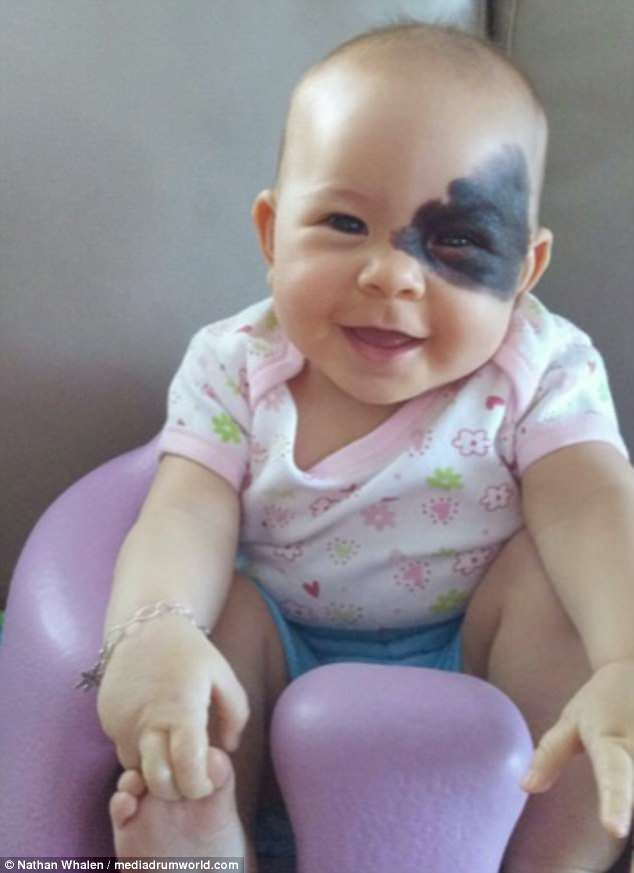 Loving: The inspiring dad has posted pictures of his daughter's birthmark  in a bid to beat the bullies who say she is 'cursed'