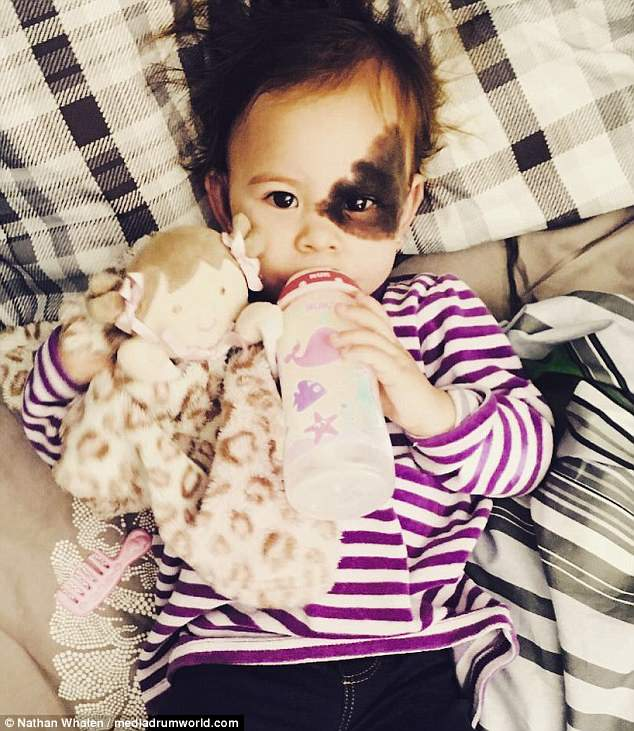 Tough call: The couple have decided not to do corrective surgery on the birthmark, as there is a slight possibility Samara could lose sight in her left eye