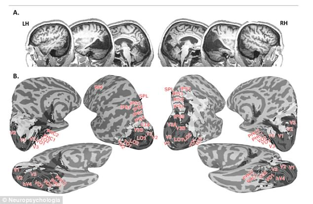 Researchers discovered an apple-sized bit of tissue missing at the back of her brain (dark grey shows no brain tissue and light grey shows abnormal tissue)