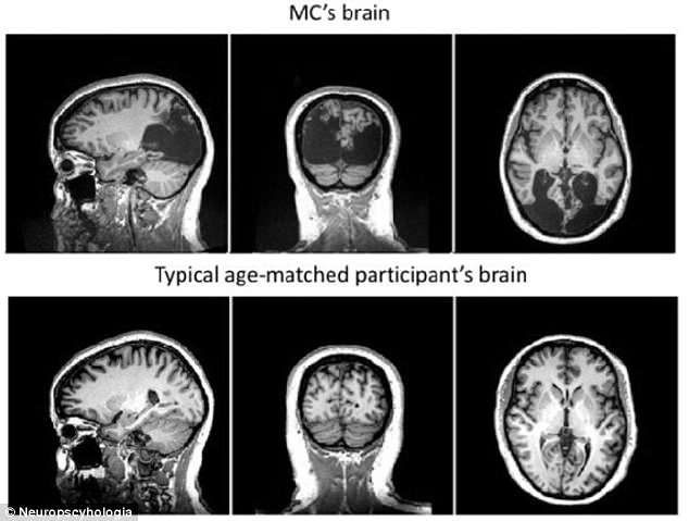 Doctors refused to believe Mrs Canning's bizarre claims at first, and thought she was just imagining things that she previously admitted in an interview (pictured: her brain in the top three pictures, compared to someone healthy of a similar age in the bottom three)