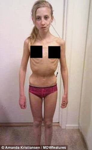 Amanda Kristiansen, 18, from Gothenburg, was just 11 years old when she started to struggle with anorexia