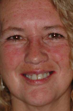 Maria Keogh, 56,ad a temporary bridge for six months