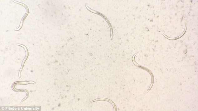 Strongyloidiasis is a hyper-infection caused by worms, which is more common worldwide than malaria