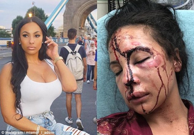 @miamor_i_adore posted two pictures of Cordon – one reportedly taken on Monday, where she is seen unharmed and another in which she is unconscious with her face covered in drying blood and bruises
