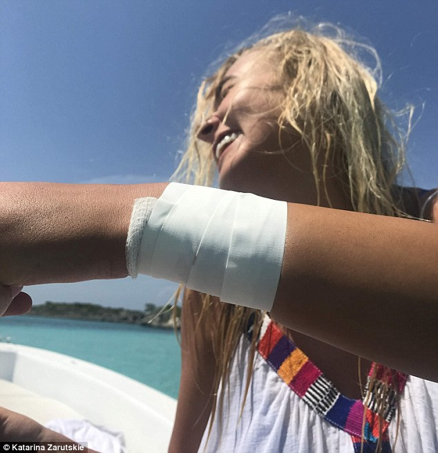 'I am so fortunate that I still have my arm': Zarutskie said she felt lucky to be alive after a shark bit her arm