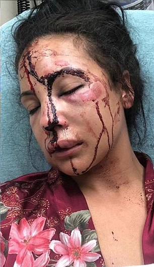 Designer Delicia Cordon was the victim of a brutal home invasion on Tuesday morning (pictured are her injuries) and has hired a lawyer who alleges Cordon's ex, LeSean McCoy, was responsible
