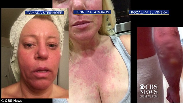 Another woman named Rozaliya Slivinska (far right) shared her rash that spread on her arm and formed bumps on her elbow