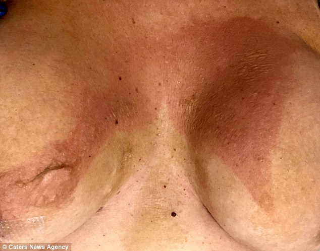 She has been applying moisturiser and bio oil to her chest in a bid to bring her scars (pictured) down