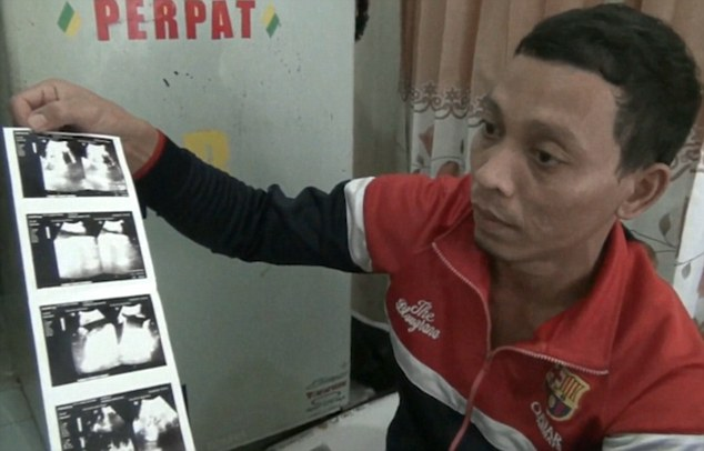 Gilang's parents are now desperate for help for their son because they cannot afford his treatment and local doctors say they do not have the equipment to operate (pictured, his father Mustafa holding the ultrasounds which failed to pick up Gilang's condition)