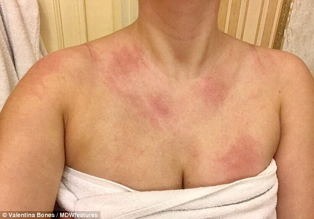 Miss Bones said: 'Aquagenic urticaria is so rare that a few years ago it didn't even have a name (pictured: a rash from being exposed to water)