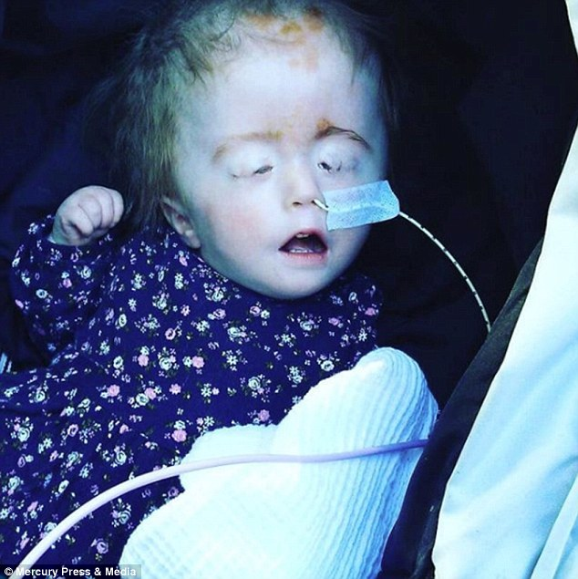 Nineteen-month-old Aubrey Jones had to have her eyes stitched shut after her eyelids were stretched by her enormous head, which was caused by the condition hydrocephalus