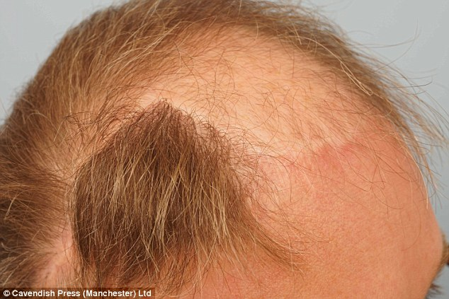 The one-day, six hour process involved around 3,000 hair follicles being removed from the thick-growing back of his head and transplanted into the required areas