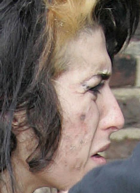 Amy's lifestyle continues to take a toll on her ravaged skin