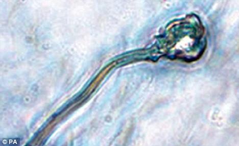 Poza spermatozoid artificial