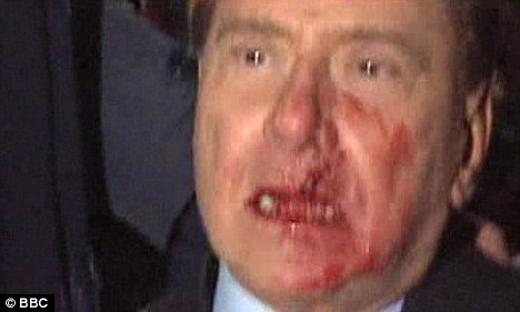 Italian PM Silvio Berlusconi Punched Assaulted In Milan