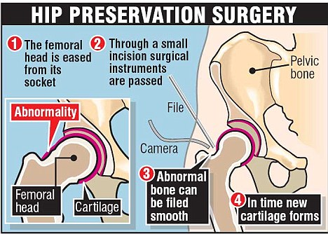 Hip preservation surgery graphic