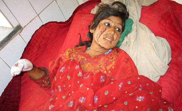 Afghan girl wounded in air strike
