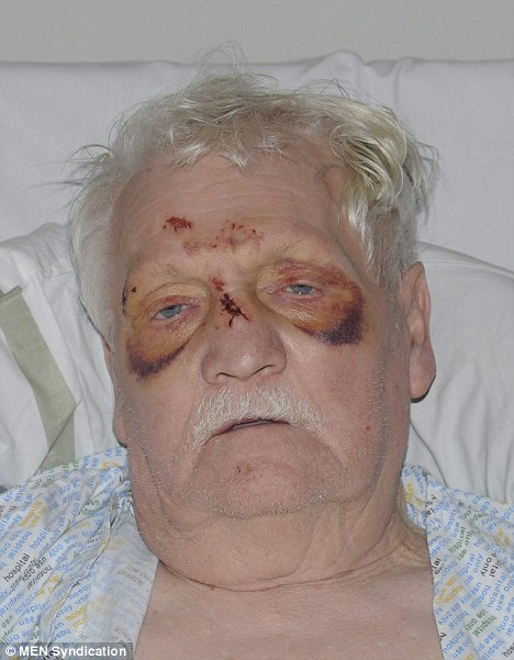 Beaten and bruised: The 69-year-old ex-serviceman, who has refused to be named, after the attack