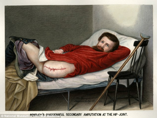 Gruesome: Private George W. Lemon, who was shot in the leg at the 1864 Battle of the Wilderness 1864. Captured by Confederates, treatment of his wounds was delayed and he suffered repeated infections. His leg was finally amputated