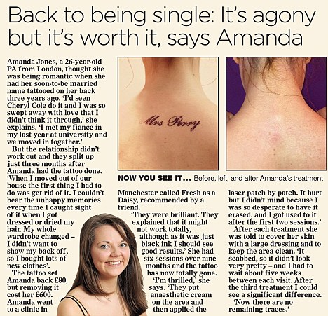 Tattoo removal: Like Megan Fox, many are beginning to ...