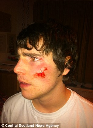 'Victim': Student Sam Main shows the injuries he apparently sustained after being thrown off the train by a fellow passenger for not having a ticket