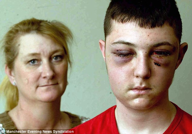 'Why me?': Daniel Stringer-Prince, 17, pictured with his mother Cheryl, has now managed to open his left eye following the attack in Hyde, Manchester